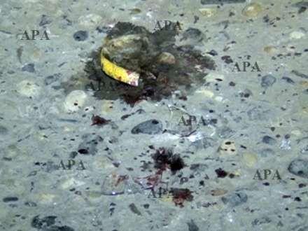Iş adamı başından bıçaqlandı