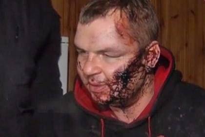 """Ukraynalı müxalifətçi: """"Məni çarmıxa çəkdilər...""""- Foto"""