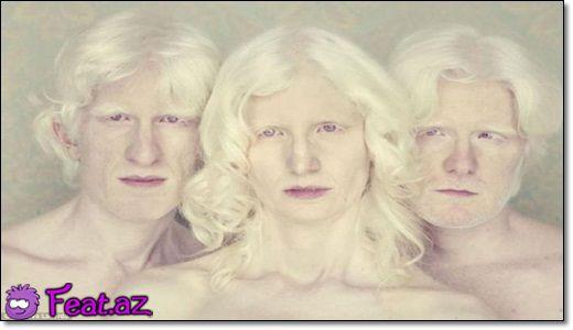 Albinos adamlar